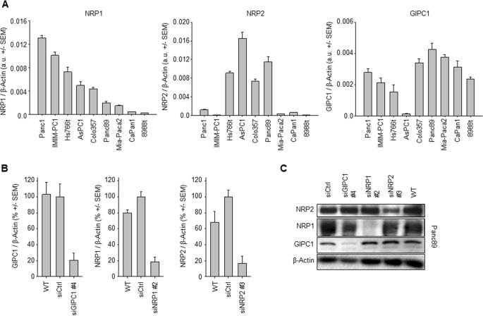 uk billig verkaufen neue Version Brandneu Silencing of Neuropilins and GIPC1 in pancreatic ductal ...
