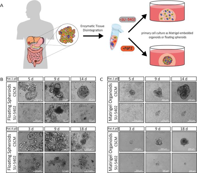 colorectal cancer organoids)