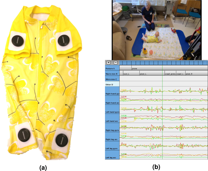 Automatic Posture And Movement Tracking Of Infants With Wearable Movement Sensors Scientific Reports