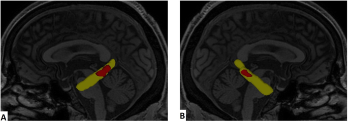 Fractional Anisotropy changes in Parahippocampal Cingulum due to Alzheimer's Disease
