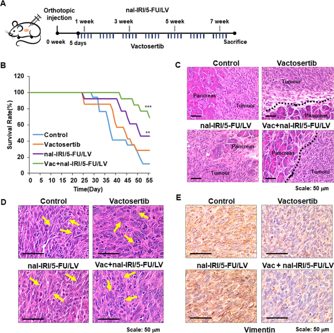 Inhibition of TGF-β signalling in combination with nal-IRI plus 5-Fluorouracil/Leucovorin suppresses invasion and prolongs survival in pancreatic tumour mouse models