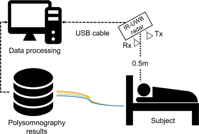 Non-contact diagnosis of obstructive sleep apnea using impulse-radio ultra-wideband radar
