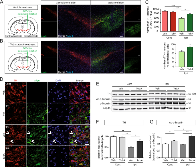 Inhibition of HDAC6 activity protects dopaminergic neurons from alpha-synuclein toxicity