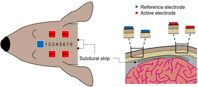 Analyzing the advantages of subcutaneous over transcutaneous electrical stimulation for activating brainwaves