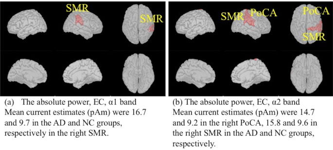 Spontaneous MEG activity of the cerebral cortex during eyes closed and open discriminates Alzheimer's disease from cognitively normal older adults