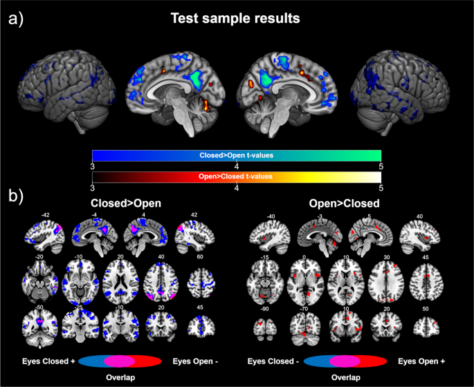 Opening or closing eyes at rest modulates the functional connectivity of V1 with default and salience networks