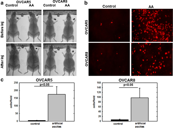 Ascites Induced Compression Alters The Peritoneal Microenvironment And Promotes Metastatic Success In Ovarian Cancer Scientific Reports
