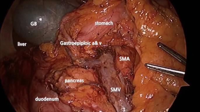 Colorectal cancer lymph nodes Metastatic cancer lymph nodes - Content not found