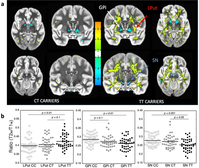 The schizophrenia risk locus in SLC39A8 alters brain metal transport and plasma glycosylation