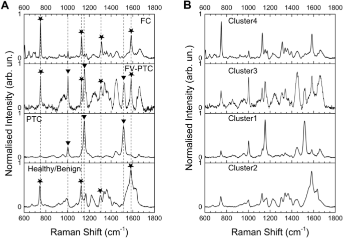Thyroid Cancer Diagnosis By Raman Spectroscopy Scientific Reports