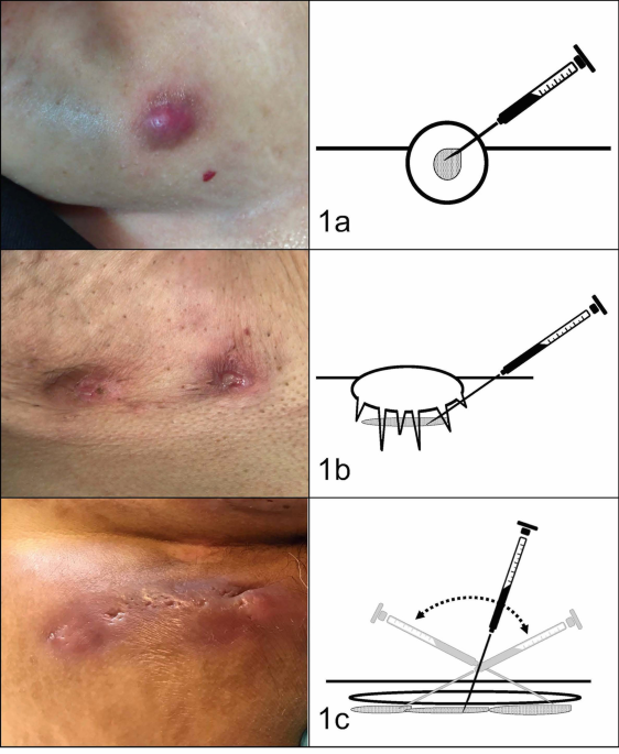 Ultrasound Assisted Intralesional Corticosteroid Infiltrations For Patients With Hidradenitis Suppurativa Scientific Reports
