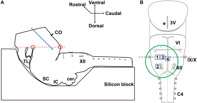 Structural and functional connectivity from the dorsomedial hypothalamus to the ventral medulla as a chronological amplifier of sympathetic outflow