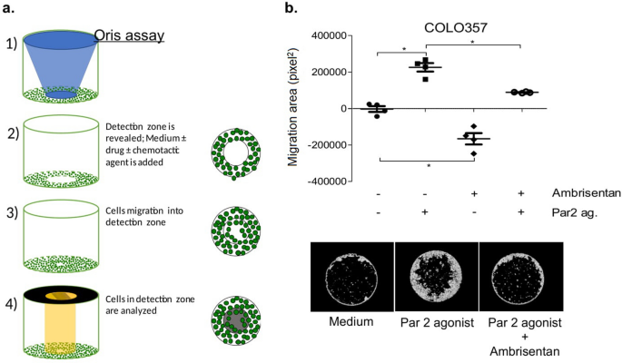 Ambrisentan, an endothelin receptor type A-selective antagonist, inhibits cancer cell migration, invasion, and metastasis