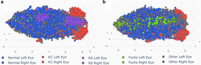 Unsupervised learning for large-scale corneal topography clustering