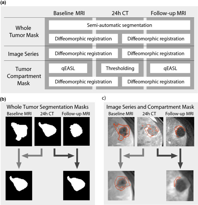 Automated feature quantification of Lipiodol as imaging biomarker to predict therapeutic efficacy of conventional transarterial chemoembolization of liver cancer