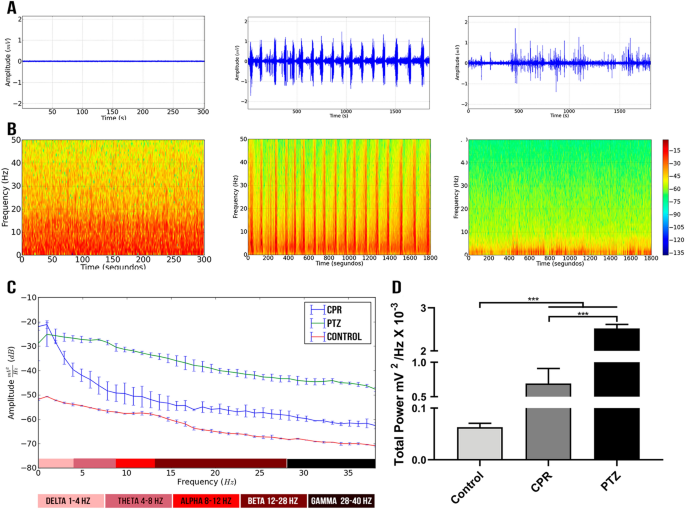 Electrocorticographic patterns dominated by low-frequency waves in camphor-induced seizures