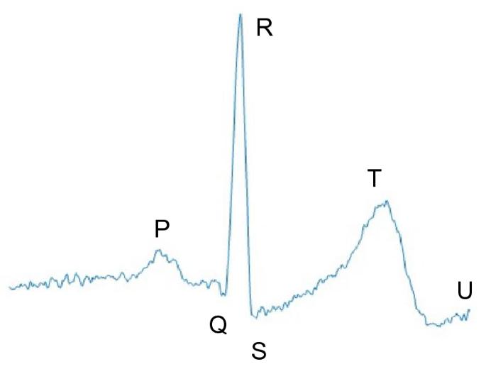 Towards better heartbeat segmentation with deep learning classification