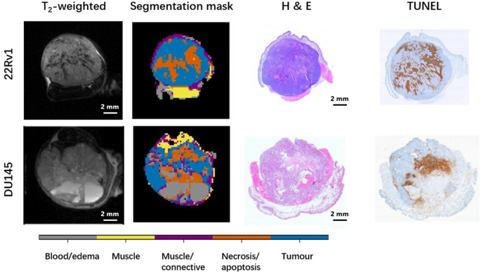Saturation transfer properties of tumour xenografts derived from prostate cancer cell lines 22Rv1 and DU145