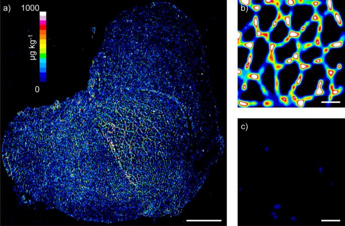 Quantitative immuno-mass spectrometry imaging of skeletal muscle dystrophin
