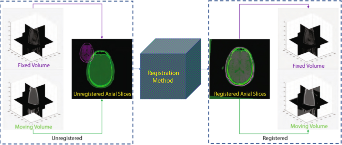 A deep learning based framework for the registration of three dimensional multi-modal medical images of the head