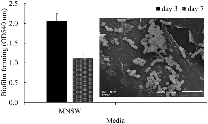 Biodegradation of crude oil by immobilized Exiguobacterium sp. AO-11 and shelf life evaluation