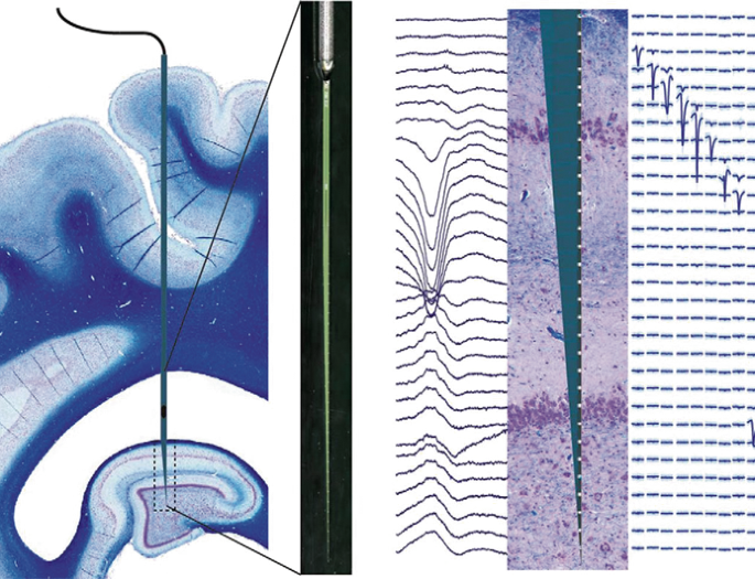 A new approach for large animal electrophysiology