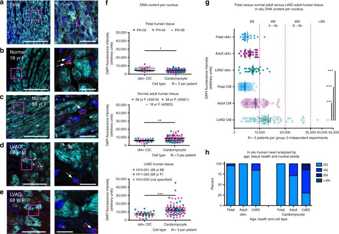 Cardiac interstitial tetraploid cells can escape replicative senescence in rodents but not large mammals