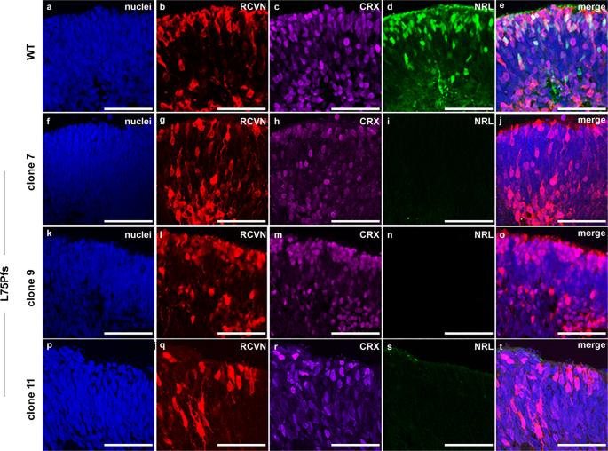 Investigating cone photoreceptor development using patient-derived NRL null retinal organoids