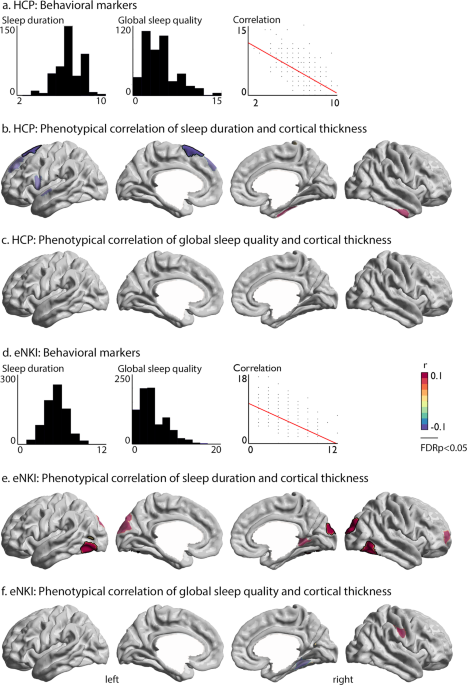 The interrelation of sleep and mental and physical health is anchored in grey-matter neuroanatomy and under genetic control