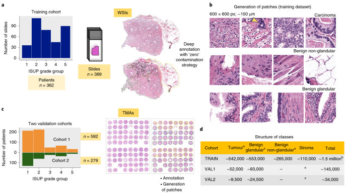 High-accuracy prostate cancer pathology using deep learning