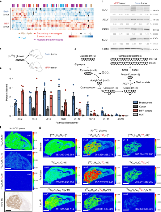 Fatty acid synthesis is required for breast cancer brain metastasis