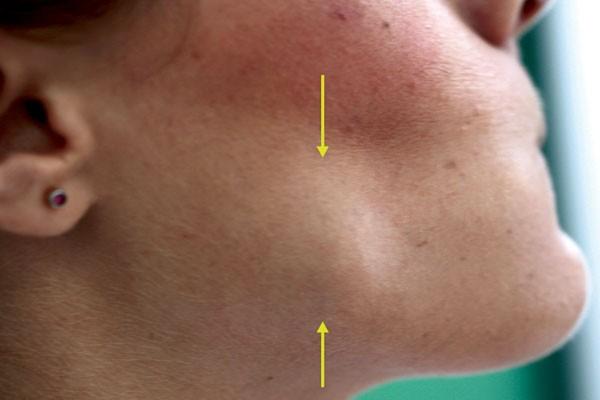 Oral Pathology Exostosis Deforming Face Features British Dental