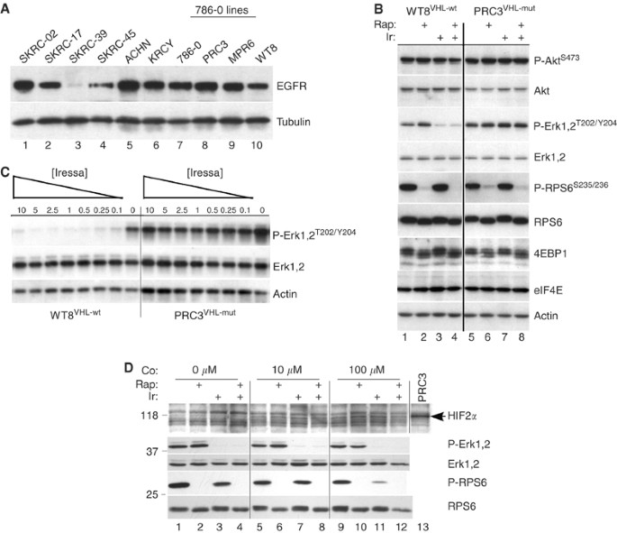 Synergistic growth inhibition by Iressa and Rapamycin is modulated