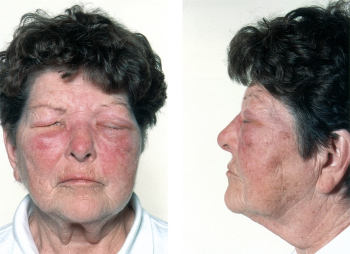 Delayed allergic reaction to hyaluronidase: a rare sequel to