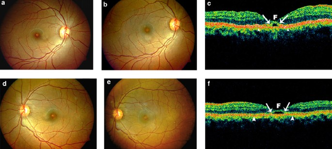 Optical Coherence Tomography Findings In A Case Of Chronic Welder S Maculopathy Eye