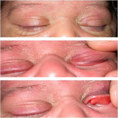 Congenital eyelid imbrication syndrome | Eye