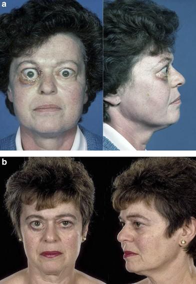 Avoiding Surgery For Thyroid Eye Disease Eye