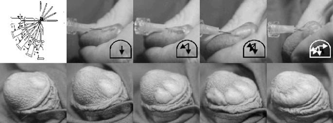 injecții de gel în penis)