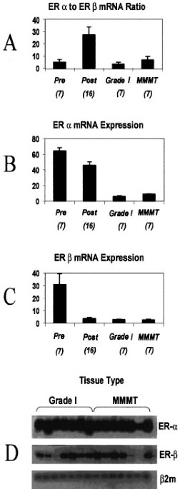 Well Differentiated Endometrial Adenocarcinomas And Poorly Differentiated Mixed Mullerian Tumors Have Altered Er And Pr Isoform Expression Oncogene