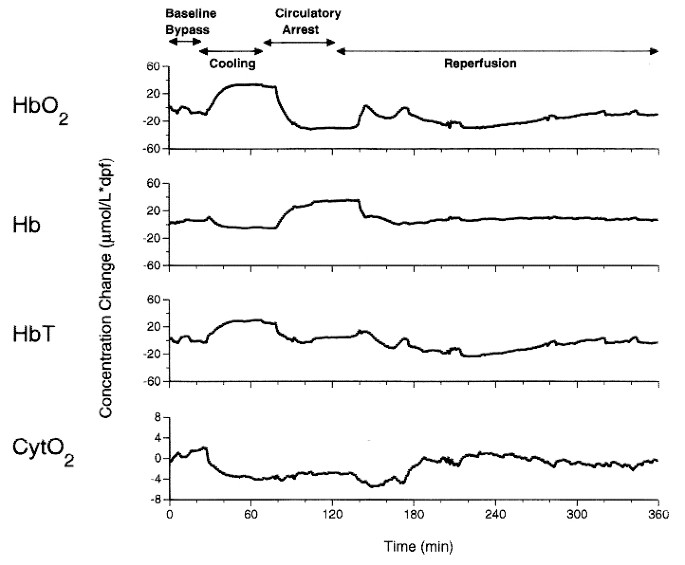 Cerebral Oxygenation Measured by Near Infrared Spectroscopy during
