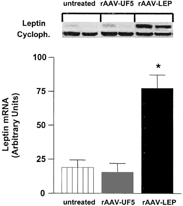 Long-Term Suppression of Weight Gain, Adiposity, and Serum ...