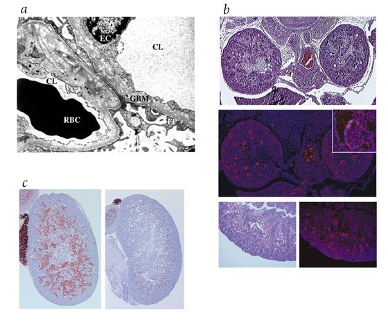 Regulation Of Glomerular Basement Membrane Collagen