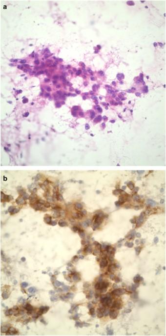Hepatocellular Carcinoma. Causes, symptoms, treatment
