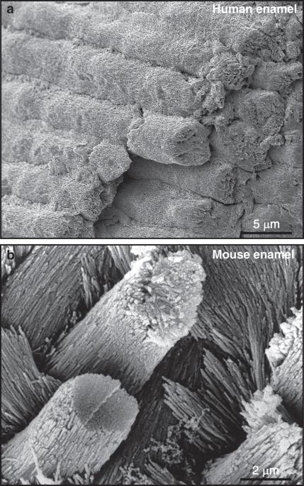 Enamel Biomimeticsfiction Or Future Of Dentistry -3394