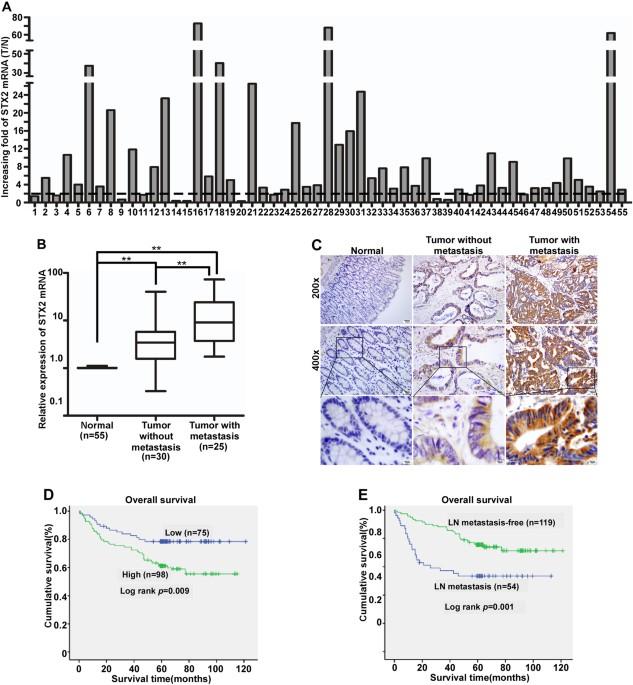 STX2 Promotes Colorectal Cancer Metastasis Through A