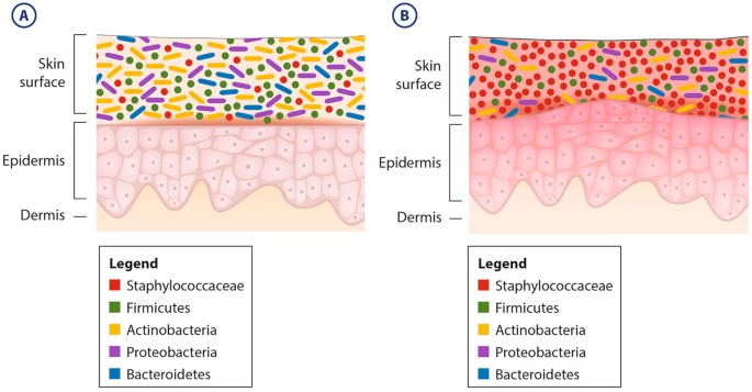 Microbial biofilms and the human skin microbiome | npj ...
