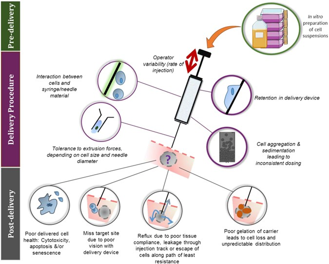 translational considerations  injectable cell based therapeutics  neurological applications