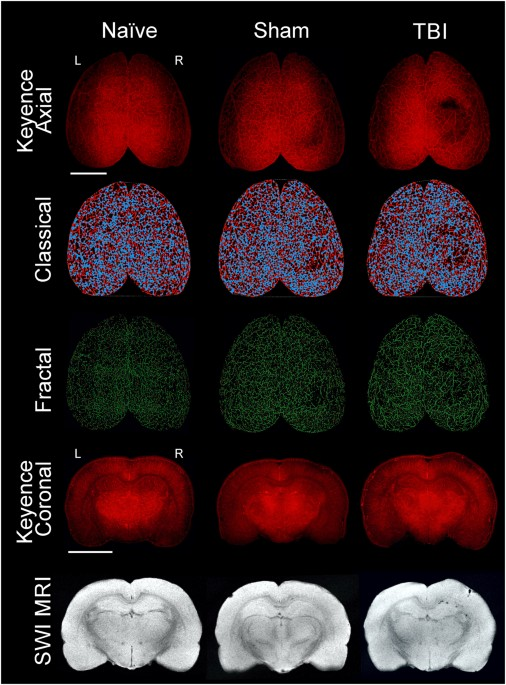 traumatic brain injury results in acute rarefication of