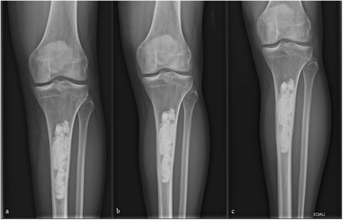 Clinical Experience With The Artificial Bone Graft
