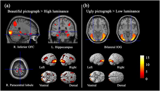 neural substrates of embodied natural beauty and social